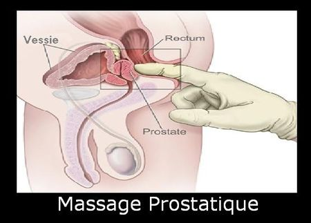 massageprodtatique