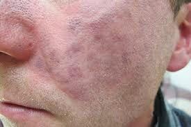 Traitements de la rosacée par la médecine traditionnelle PAR GRAND MAITRE MARABOUT MEDIUM VOYANT GBETO