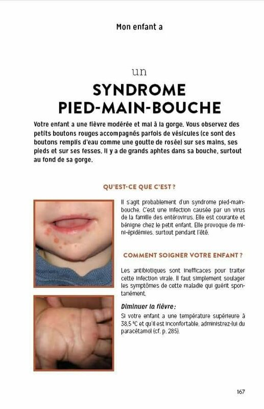 syndrome pied main bouche
