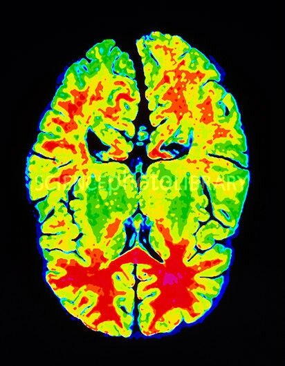 MRI_horizontal_image_of_a_normal_brain-SPL