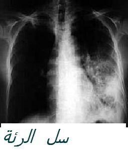 tuberculose_poumon_2