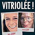 Patricia lefranc : la femme à qui l'on a volé le visage mais qui n'a pas perdu la face (par daphnis olivier boelens, 07/2015)