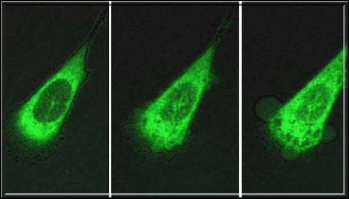 Des nano-machines creusent dans des cellules cancéreuses et les tuent en à peine 60 secondes